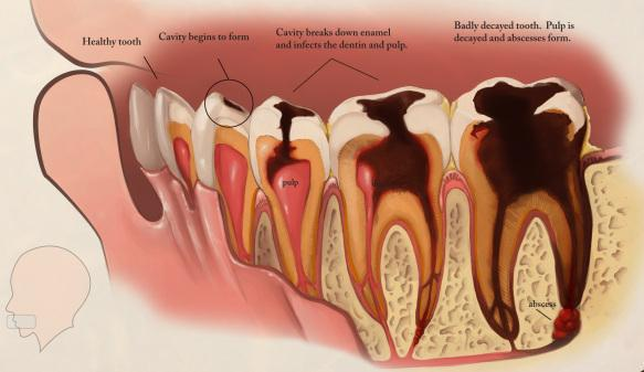 molar tooth decay - 789×600