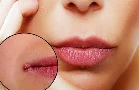 Painful cracks at the corners of the mouth?