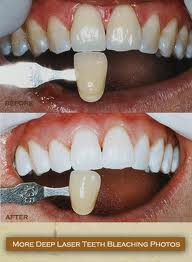 laser teeth bleaching before and after