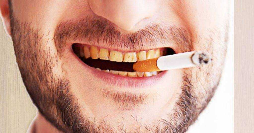 smoking makes teeth yellow
