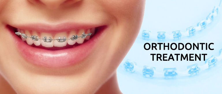 Types of Orthodontic Treatment