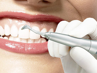 Teeth Cleaning treatment, Dental Cleaning Teeth cost, Professional dental teeth cleaning, Deep cleaning cost, Teeth Cleaning