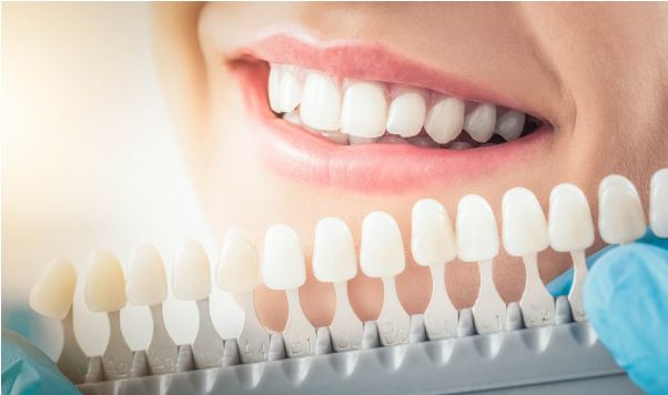 cosmetic dentistry- veneer