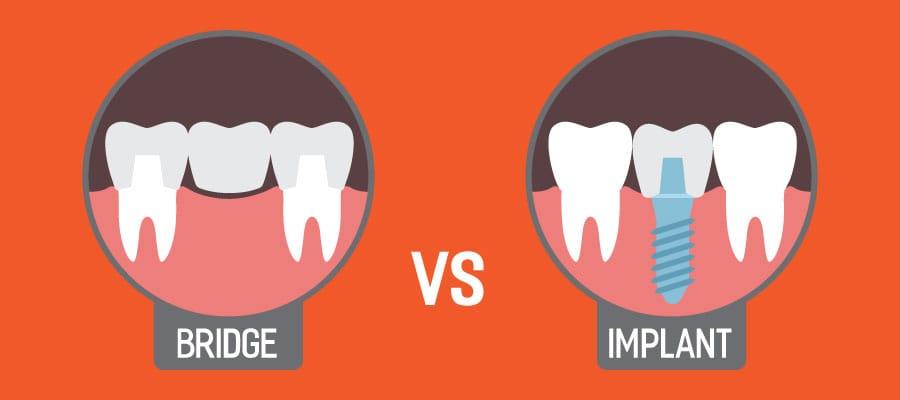 , Dental Implants vs Bridges: How to Know What's Best for You