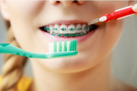 How to keep your braces clean?